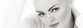 Alopecia areata Beauty lounge Haarlem