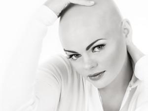 Alopecia areata camoufleren tatoeeren Haarlem