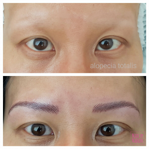 alopecia permanente make up amsterdam haarlem den haag