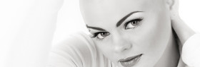 Alopecia areata Beauty lounge Haarlem